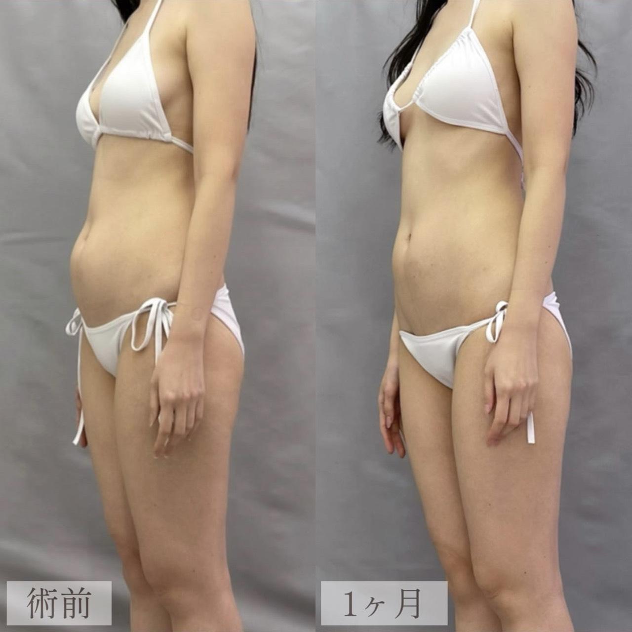 クールスカルプティング【腹部】の画像
