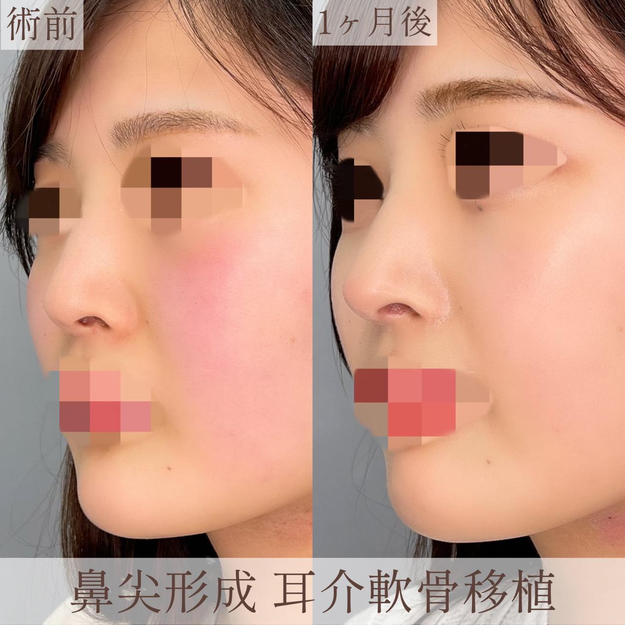 鼻尖形成 耳介軟骨移植の画像