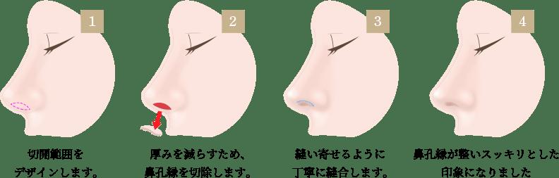 鼻孔縁挙上術の画像