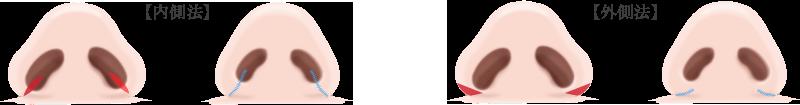 鼻翼縮小術の画像