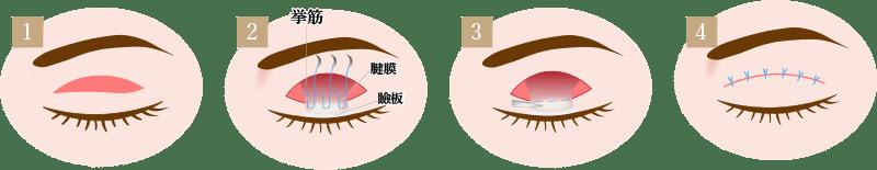 眼瞼下垂手術の画像