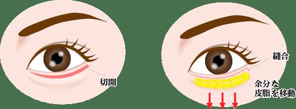 目の下のたるみ取り(ハムラ法)の画像