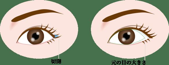 目尻切開の画像