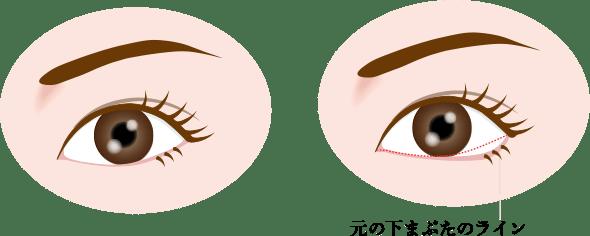 タレ目手術<br>(グラマラスライン形成)の画像