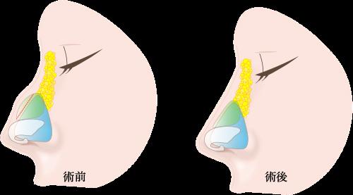 鷲鼻修正の画像
