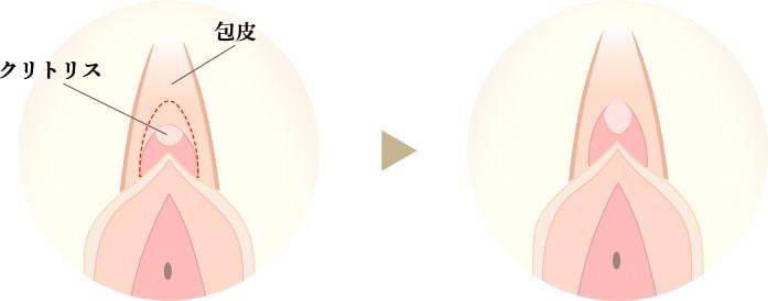クリトリス包茎手術の画像