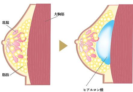 ヒアルロン酸豊胸の画像