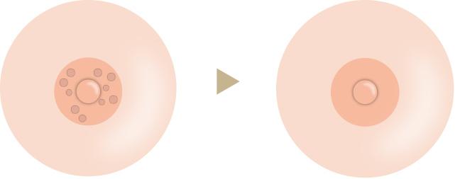 モントゴメリー腺切除の画像