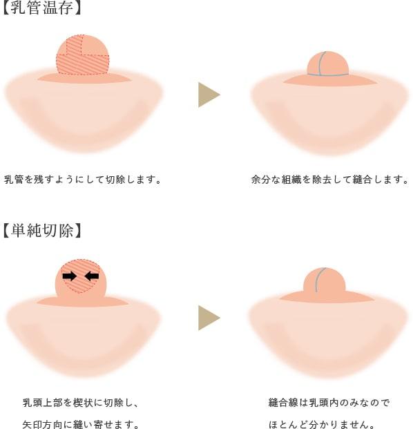 乳頭縮小の画像