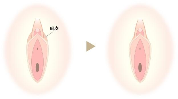 副皮除去術の画像