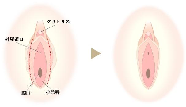 小陰唇縮小の画像