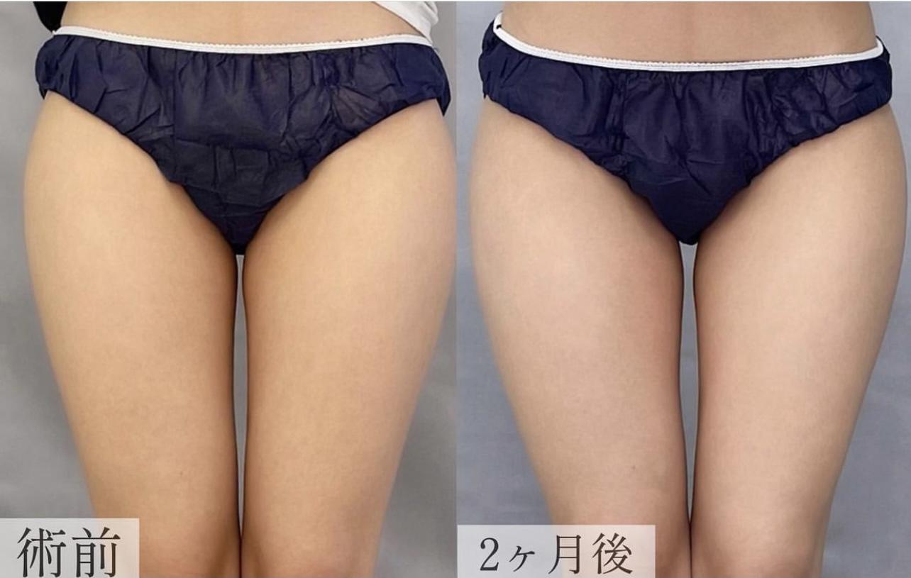 クールスカルプティング【大腿】の画像