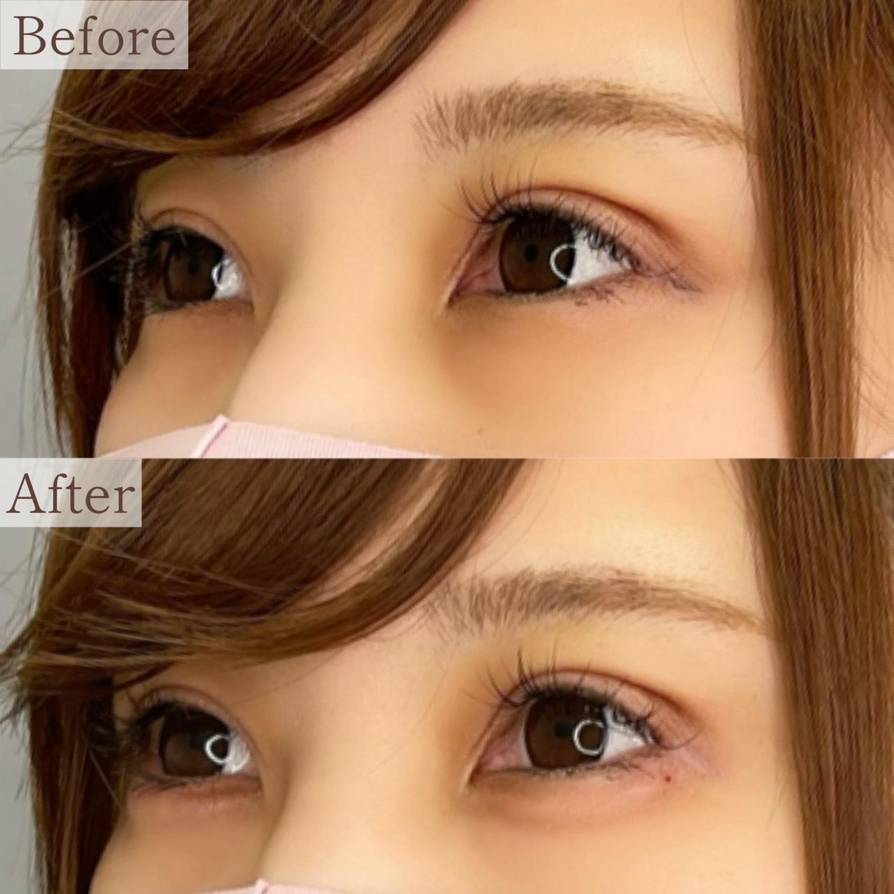 涙袋ヒアルロン酸注入の画像