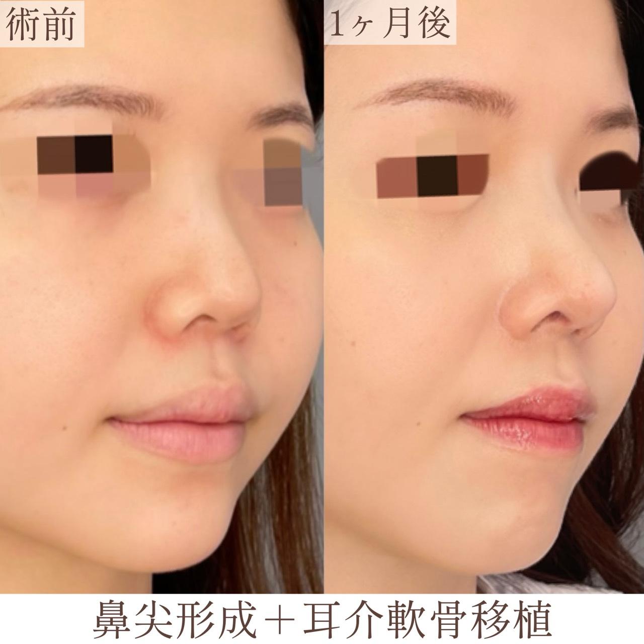 鼻尖形成・耳介軟骨移植の画像