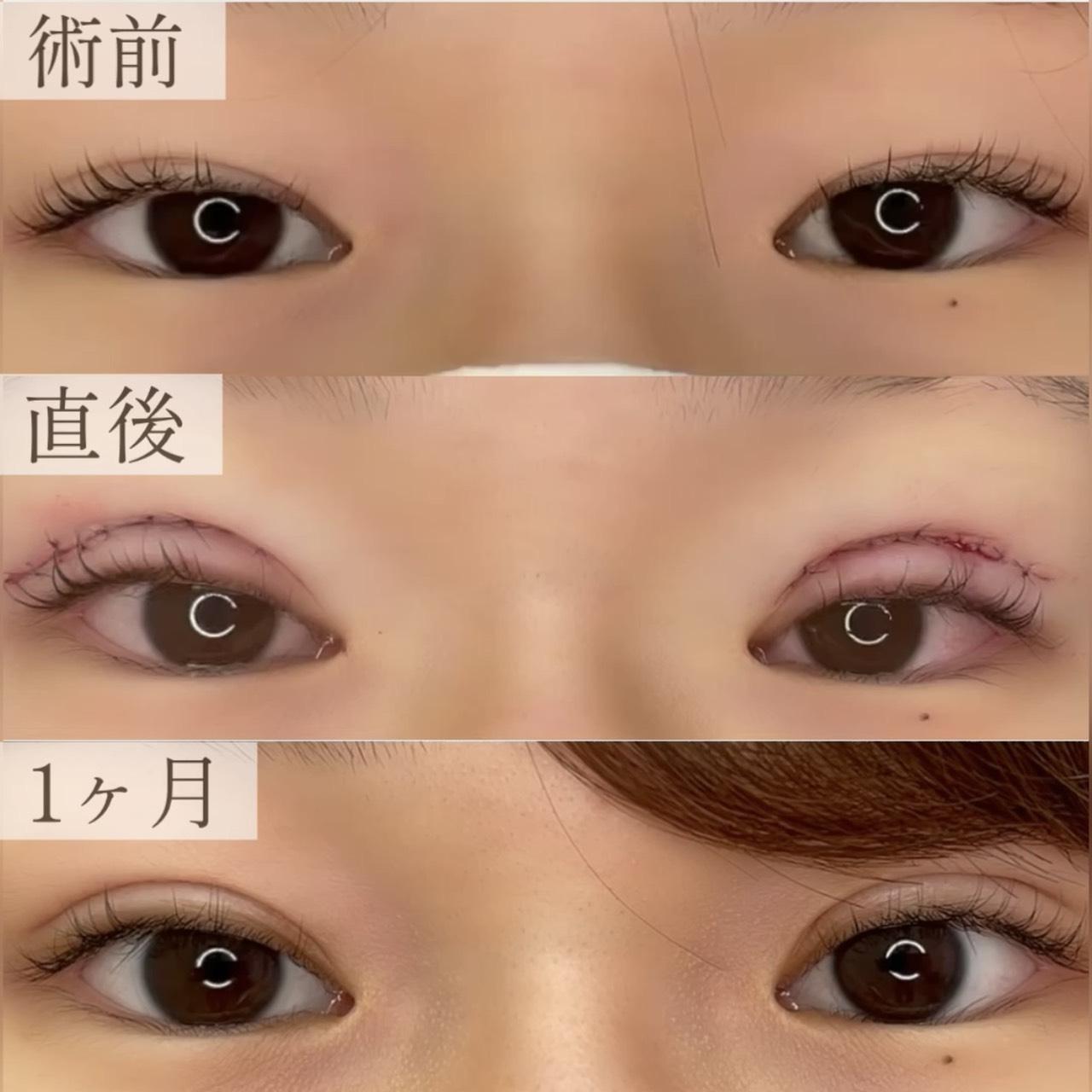 眼瞼下垂併用全切開の画像
