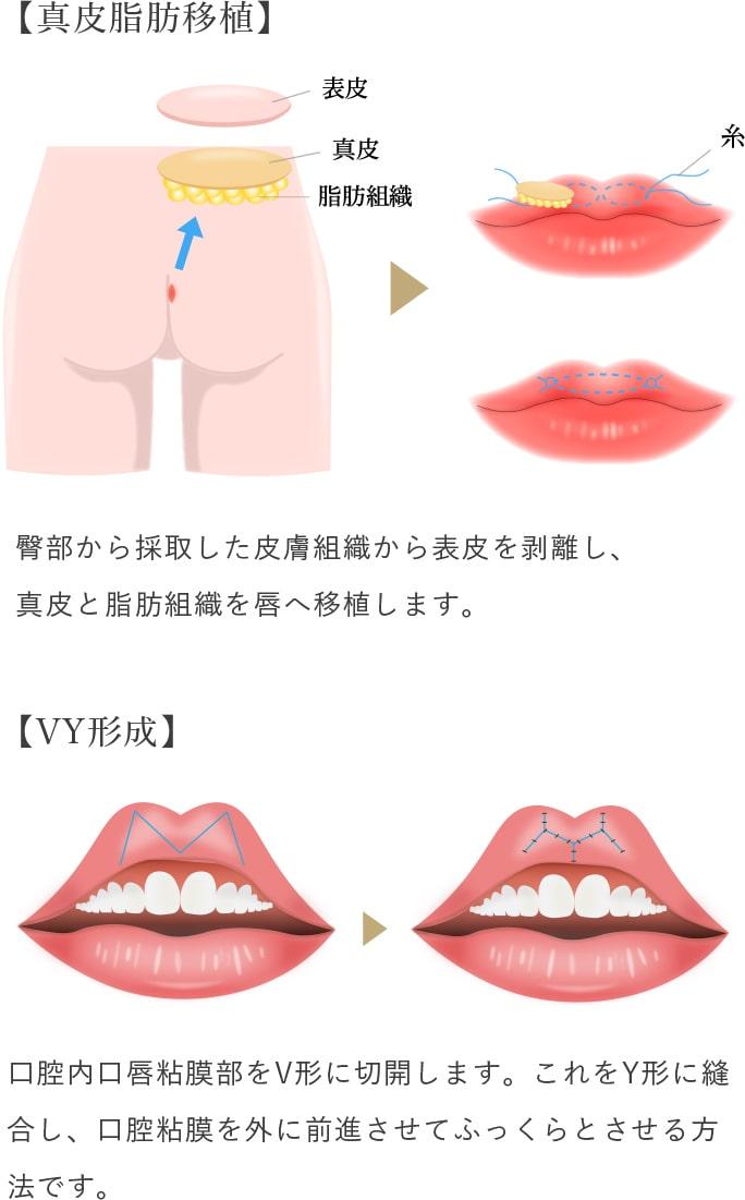 口唇増大の画像