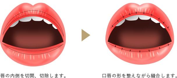 口唇縮小の画像