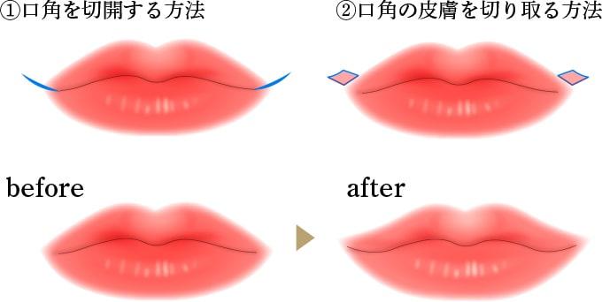 口角挙上の画像