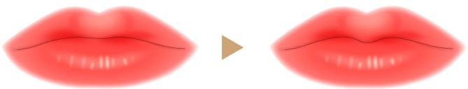 M字リップ形成の画像