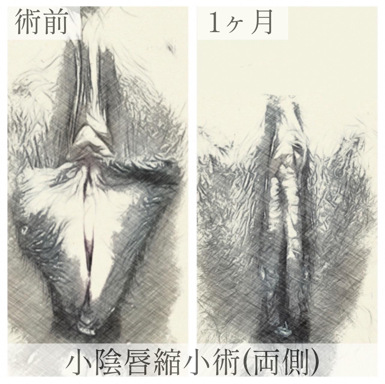 小陰唇の画像