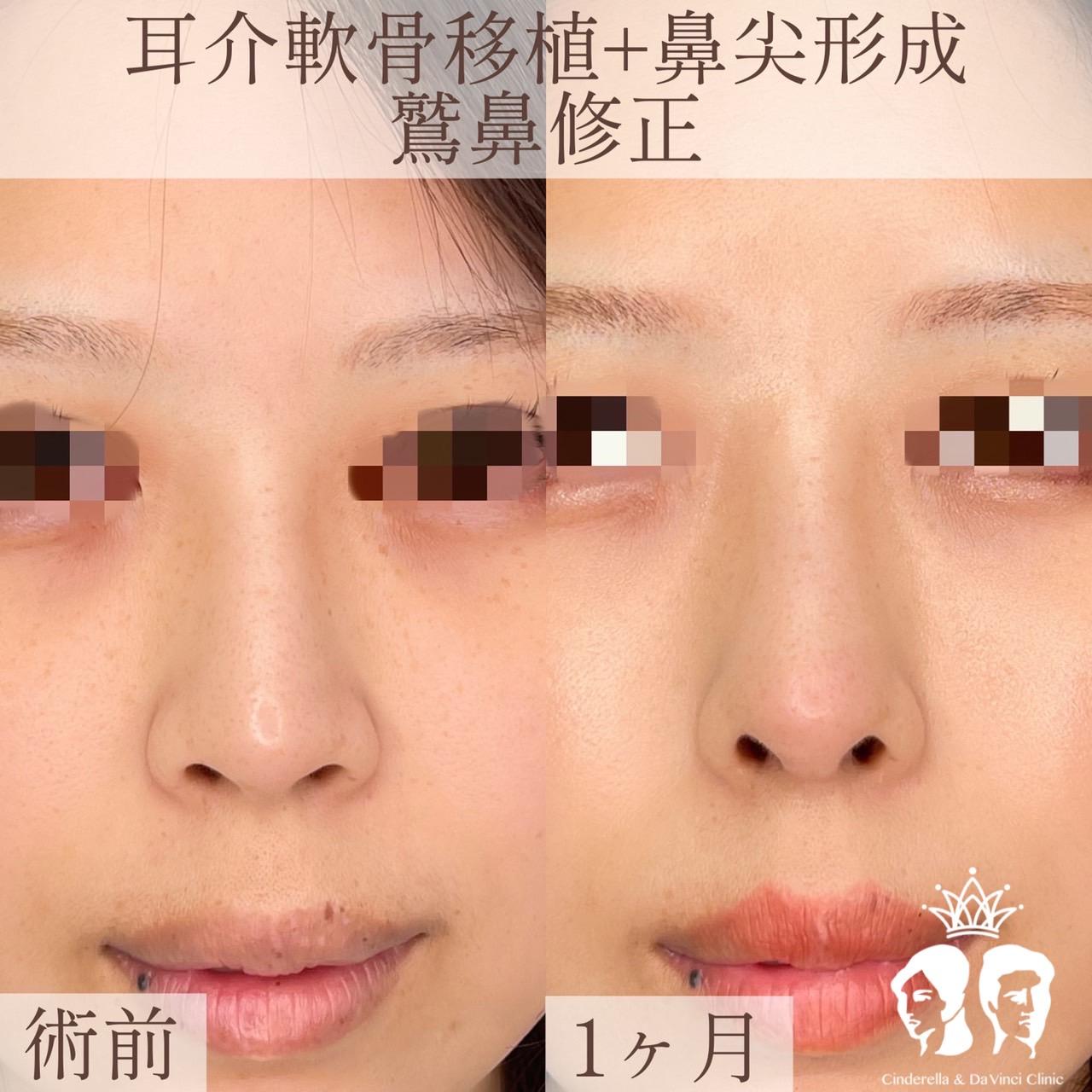 耳介軟骨移植+鼻尖形成+鷲鼻修正の画像
