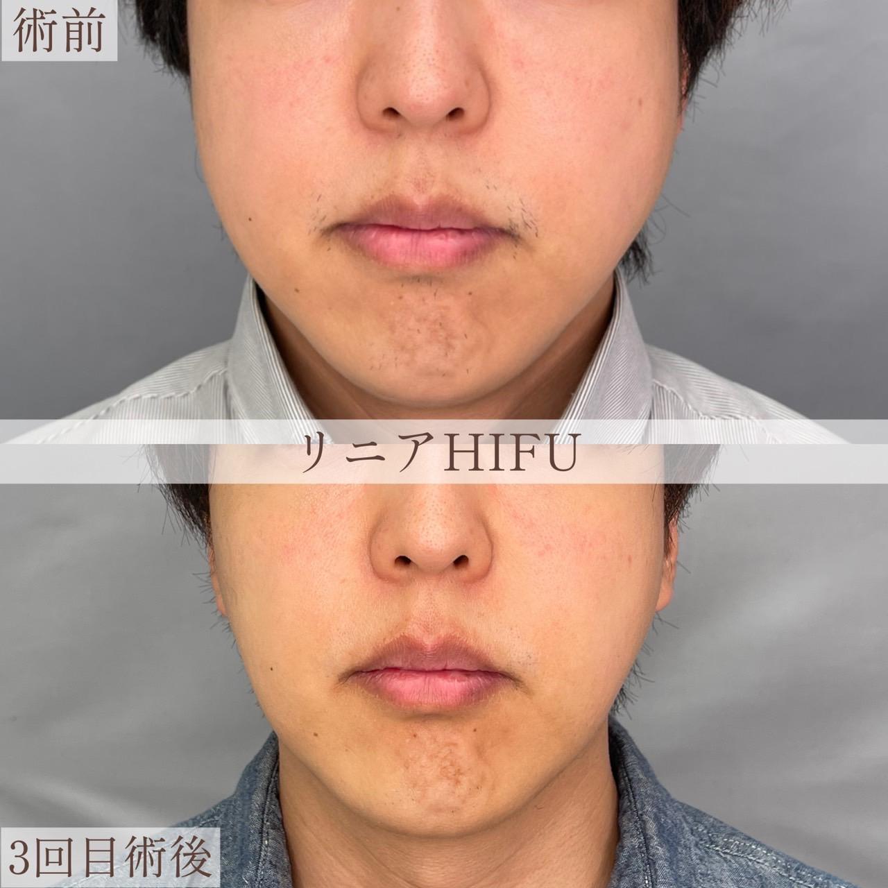 リニアHIFUの画像