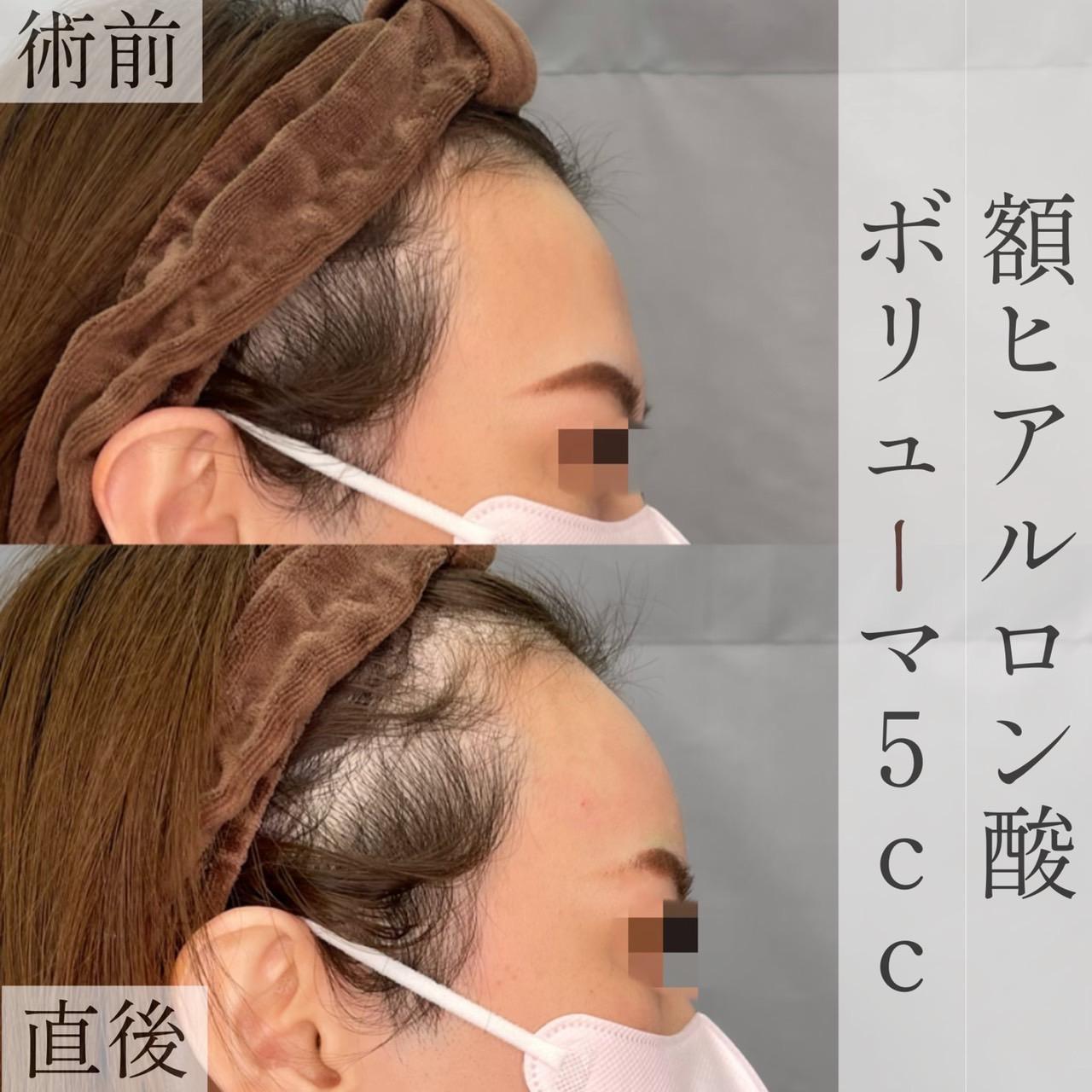 額ヒアルロン酸注入の画像