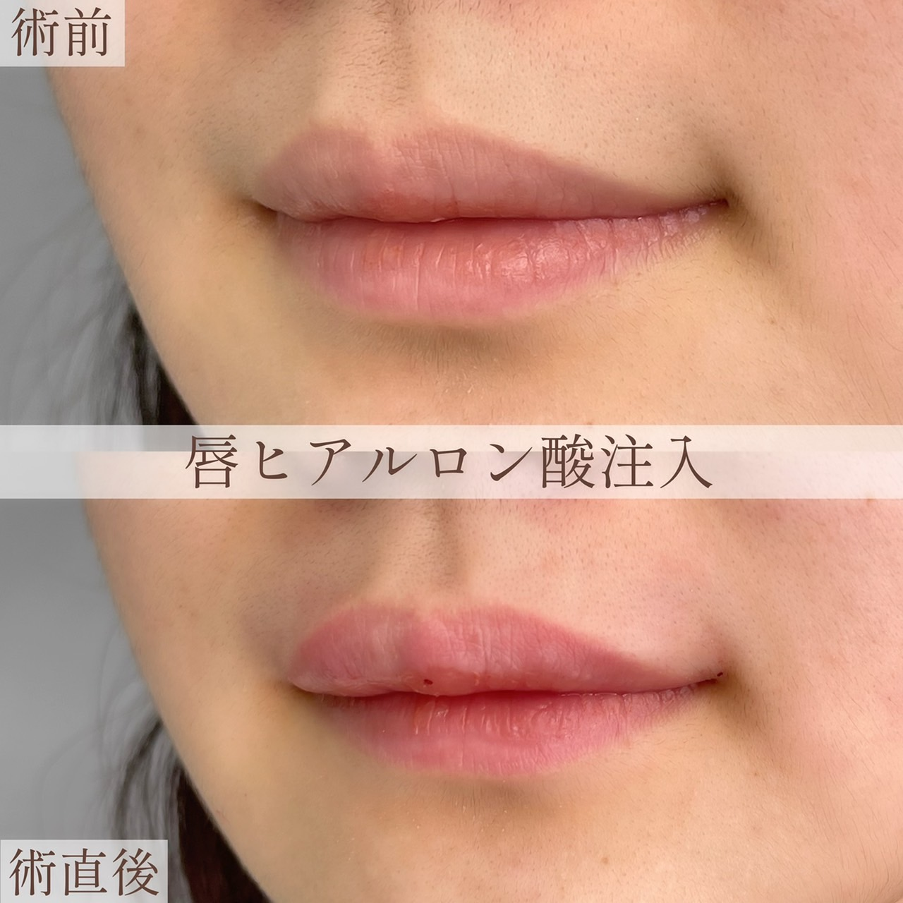 唇ヒアルロン酸注入の画像