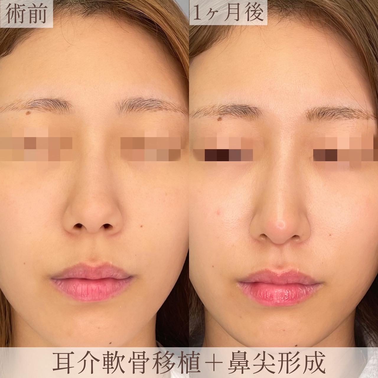 鼻尖形成+耳介軟骨移植(1ヶ月後)の画像